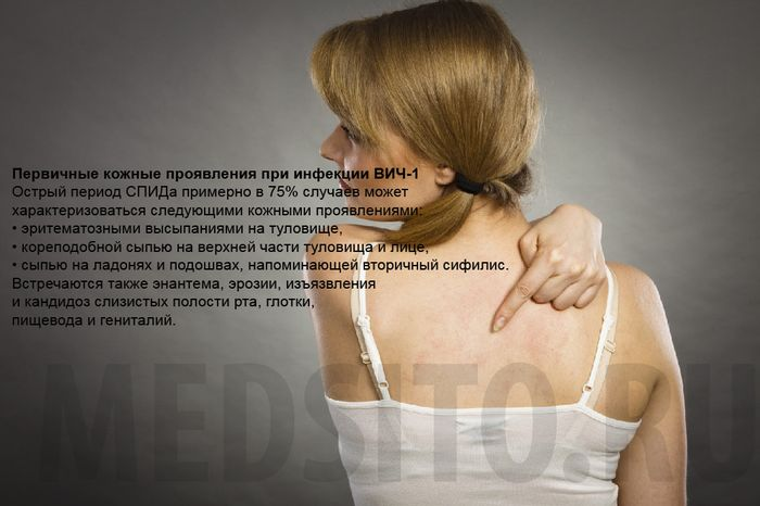 признаки вич у женщин