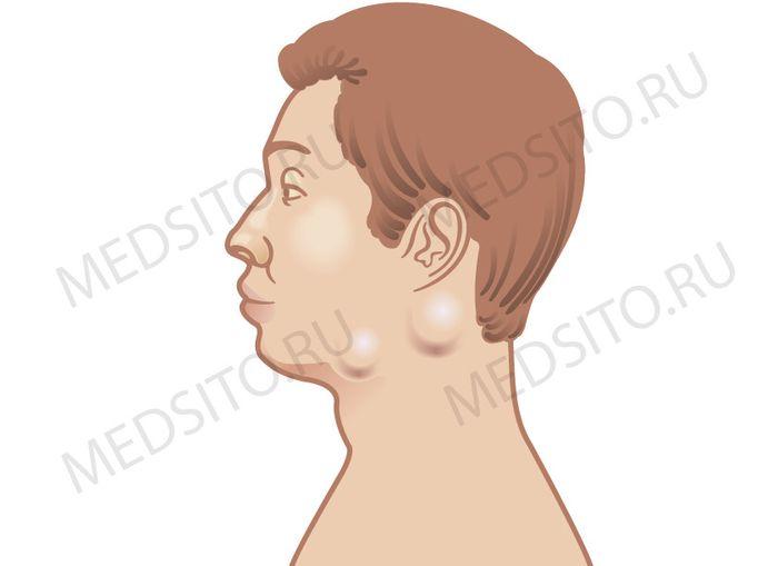 увеличение лимфоузлов при вич