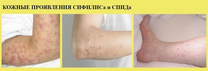 сифилис спид