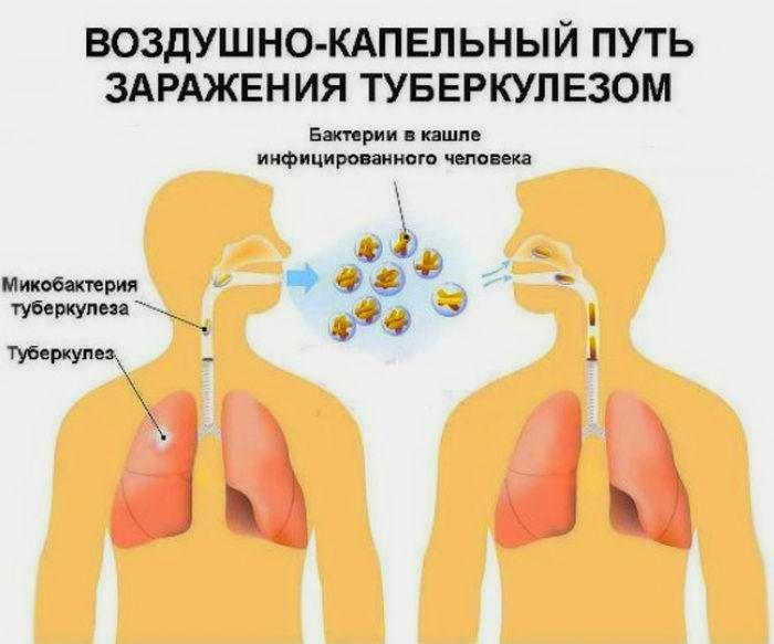 туберкулез и вич инфекция