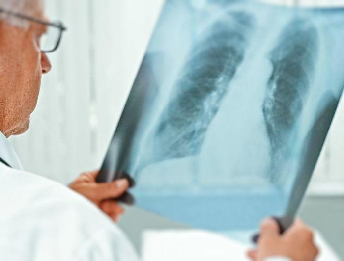 пневмония при вич