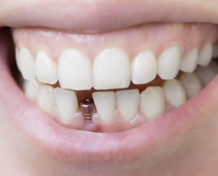 вич и зубные импланты